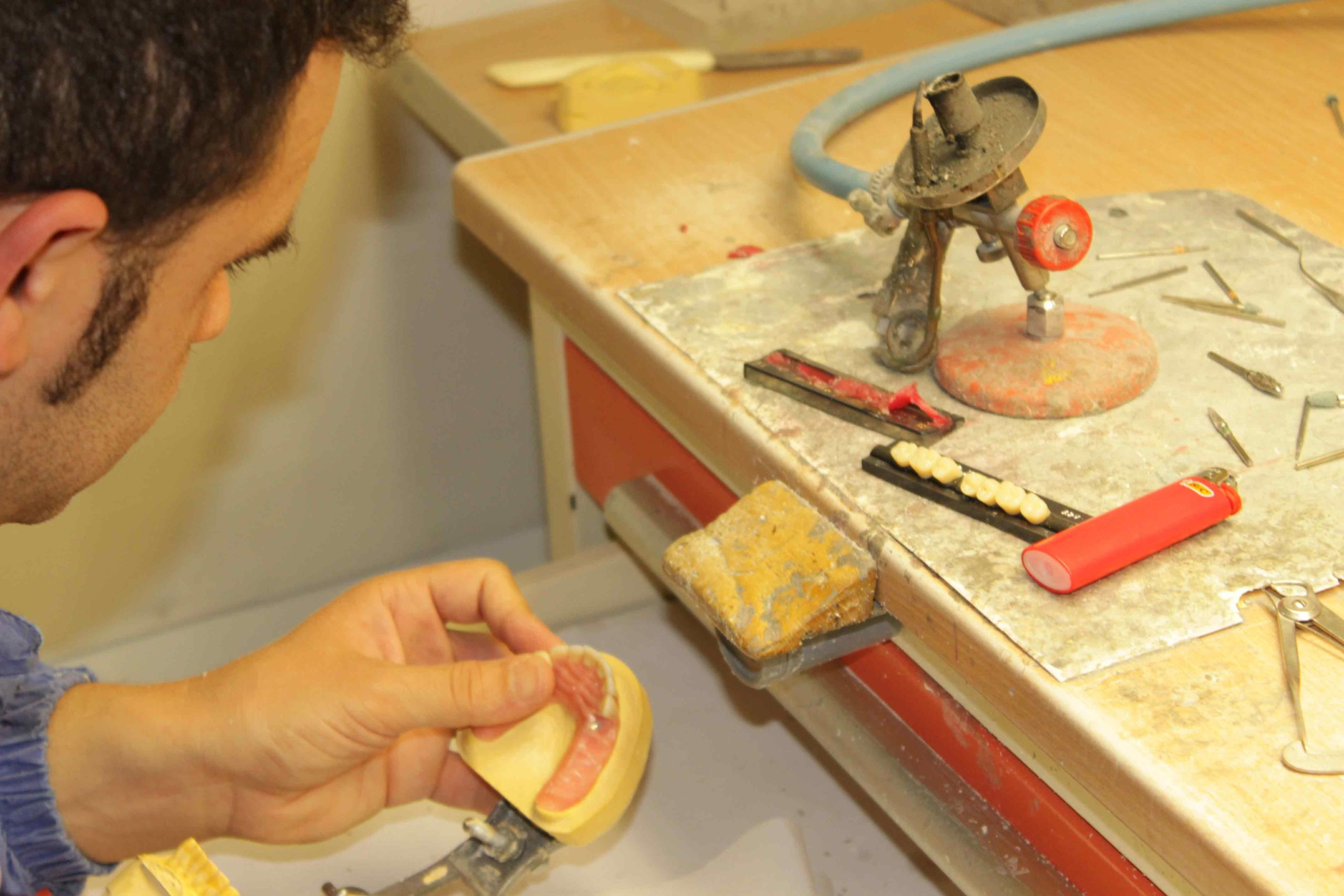 lavorazione professionale protesi dentale