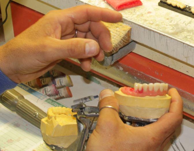 balli dettaglio lavorazione dentale
